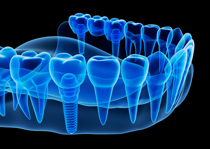 Diagram of a single tooth implant at Progressive Oral Surgery & Implantology of Long Island